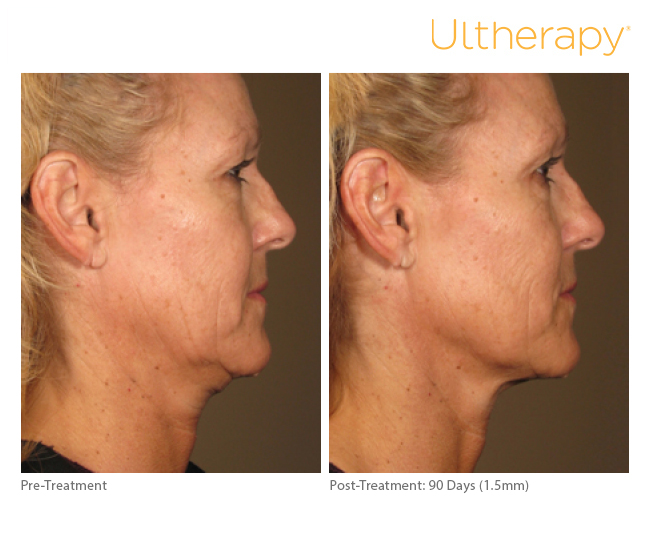 ultherapy15mm-0297j-k_before-90daysafter_full.jpg