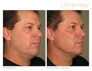 ultherapy-0058d_before-120daysafter_full.jpg