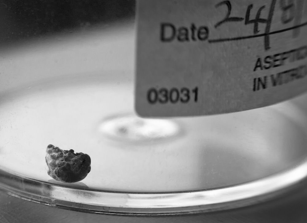 day_237_px_2012_kidneystone_0020a.jpg
