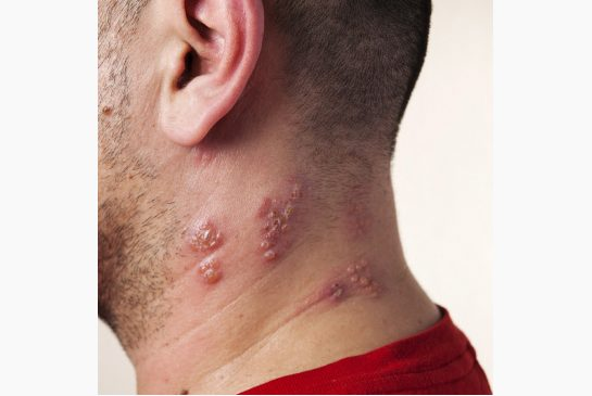 Herpes zoster (shingles) vaccine is recommended for people age 60 and over