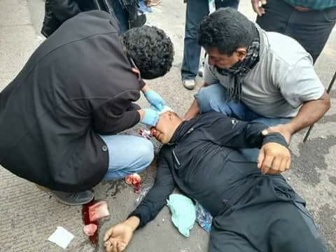 protester shot in Choluteca during protests on monday, December 11. photographer unknown.