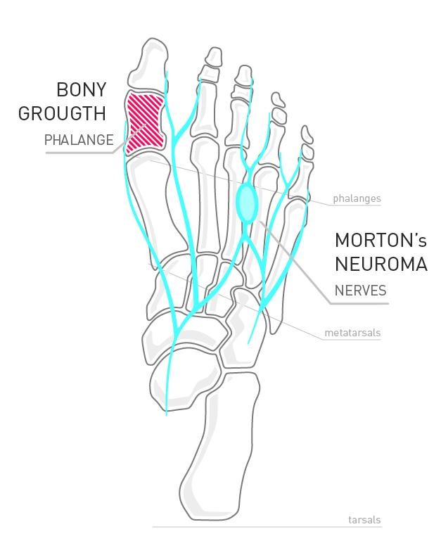 collapsible heel design design new york Diagram of Human Heel feet bones top
