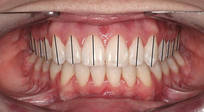 Dental Characteristics