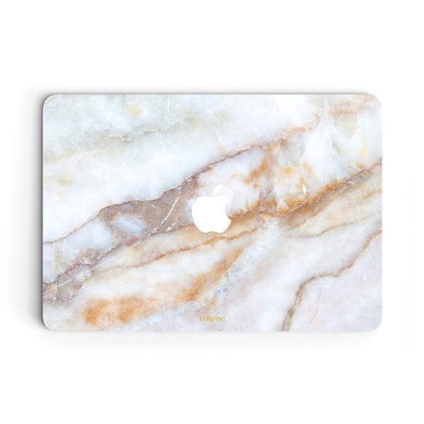 Uniqfind MacBook Skin + Case
