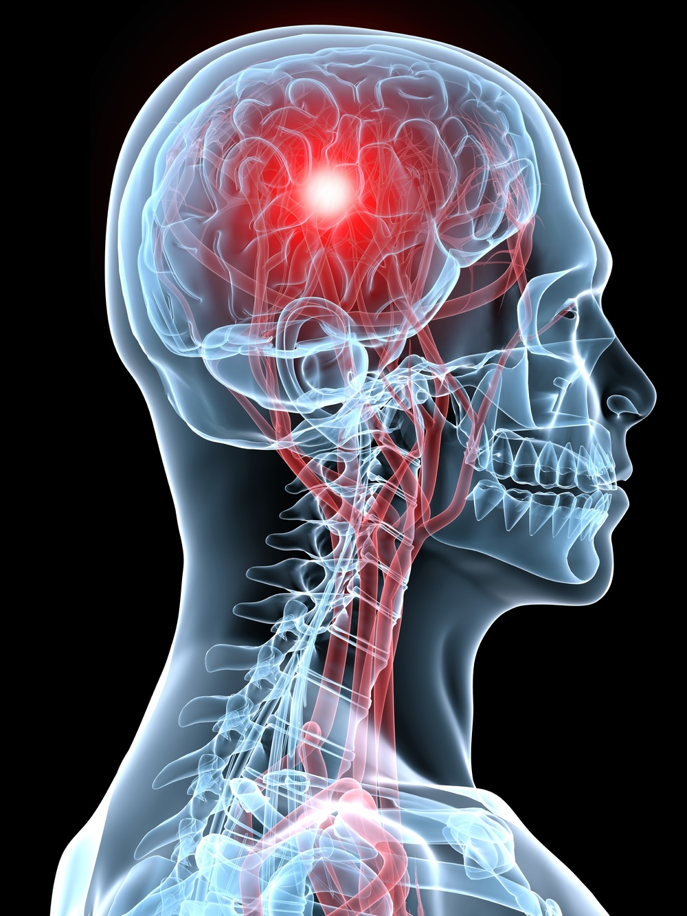 concussions chiropractic rehab