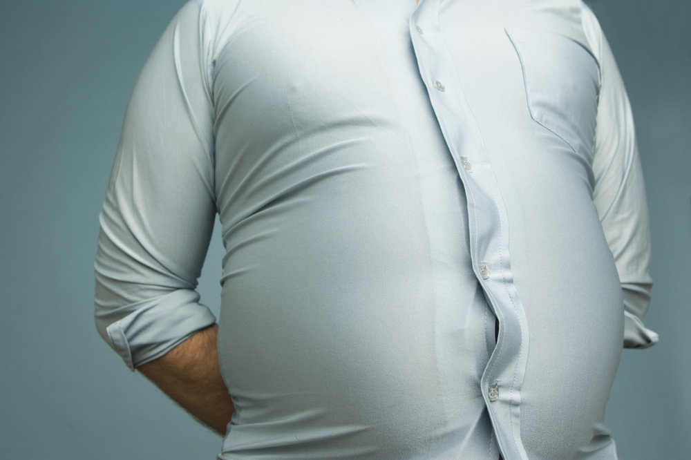 Are you obese? Could it be genetic? -