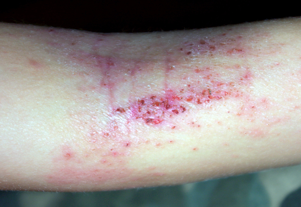 Got Eczema? -