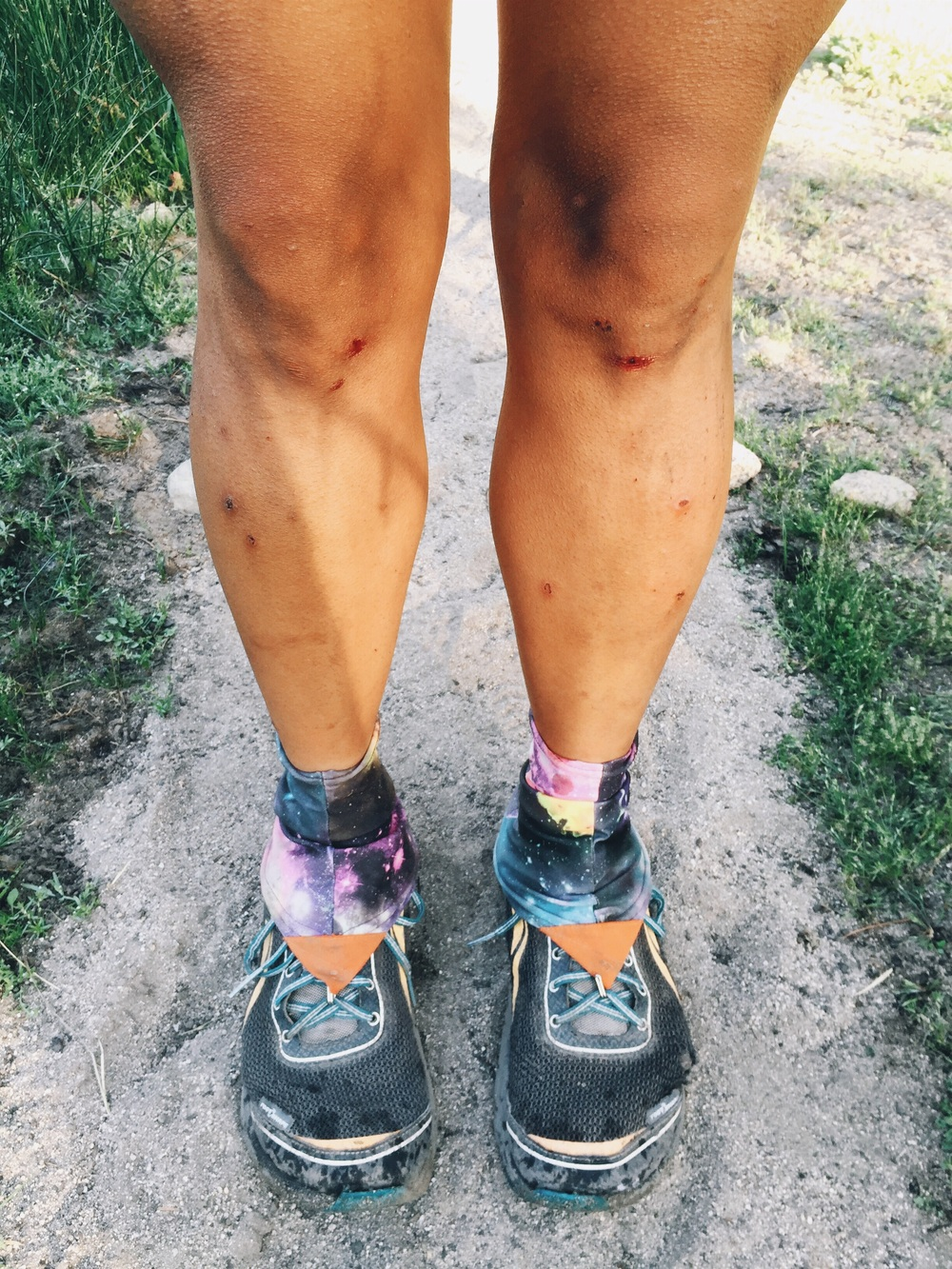 My knees after my fall.