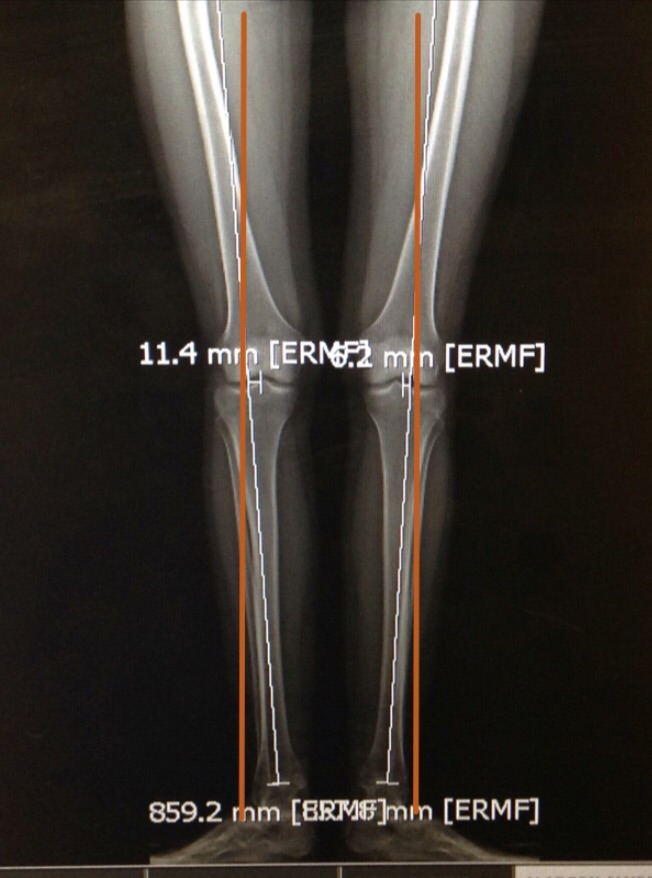 Here is an x-ray pre-surgery. The orange line is for reference as to where my bones should be.