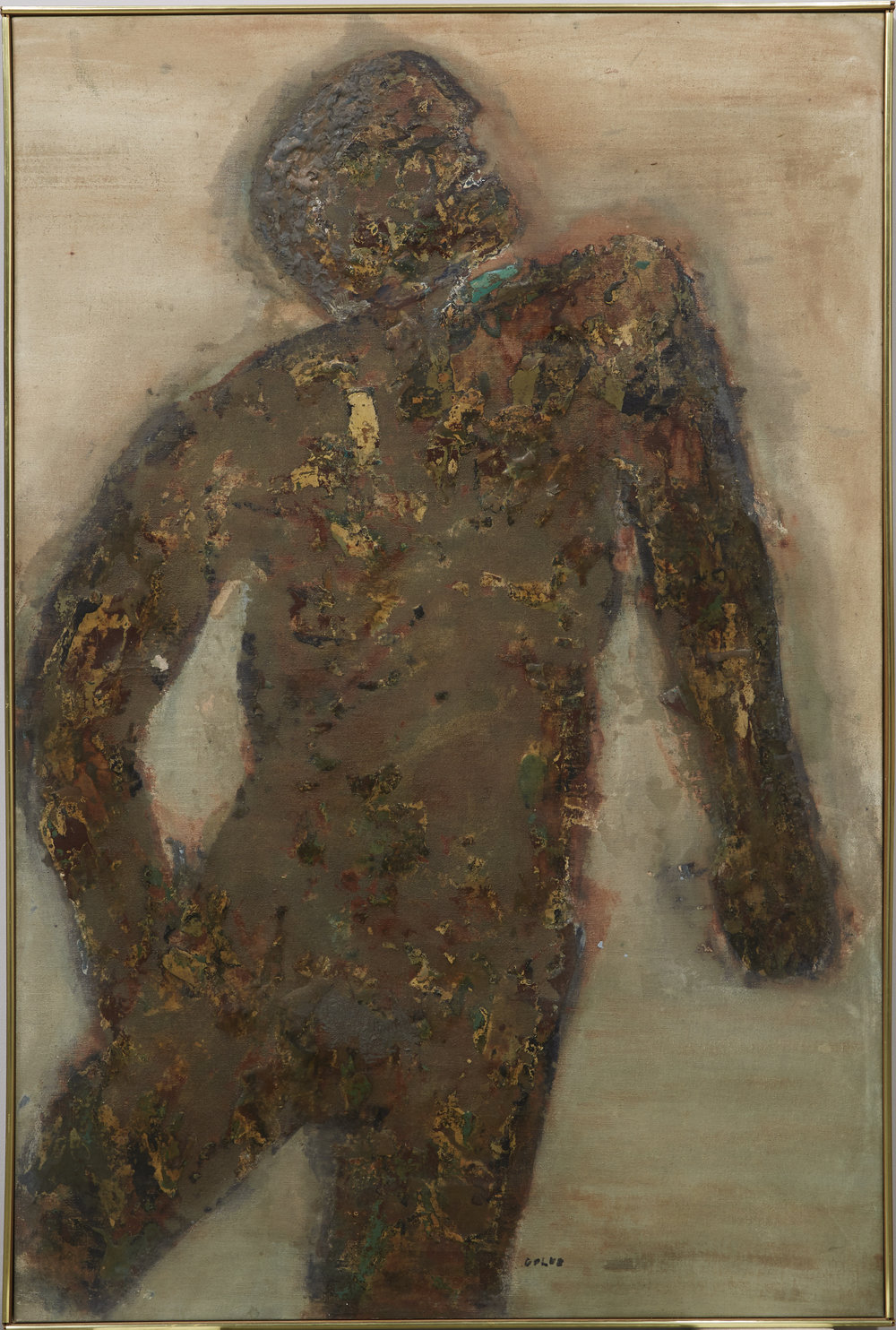 Burnt Man , Leon Golub, before treatment at The Center.