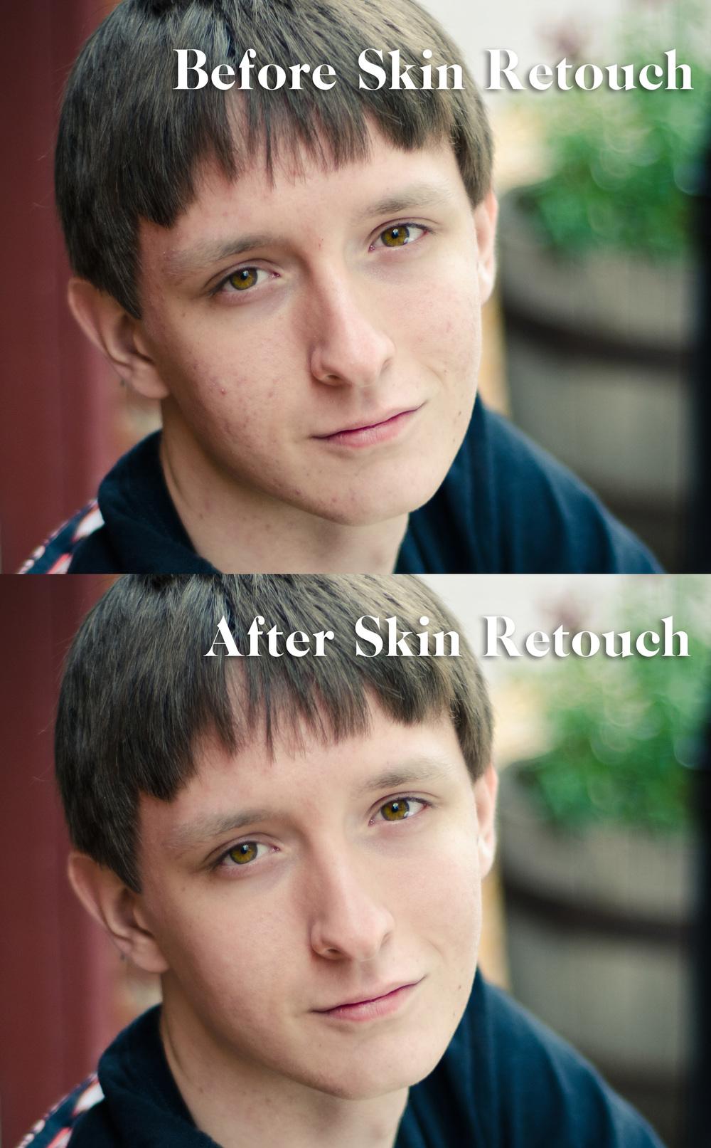 Skin Retouch 1.jpg