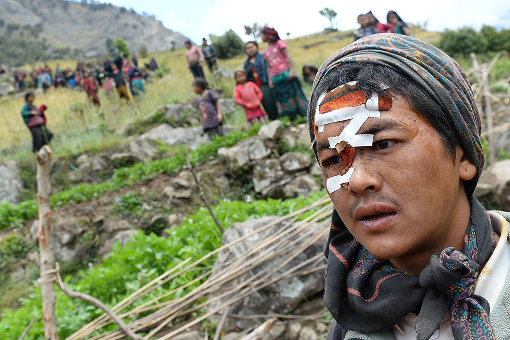 nepal-wounded man.jpg
