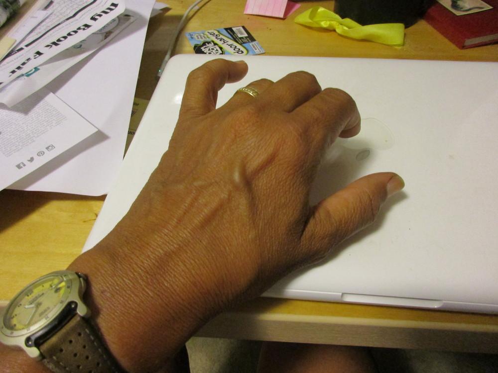 Normal left hand
