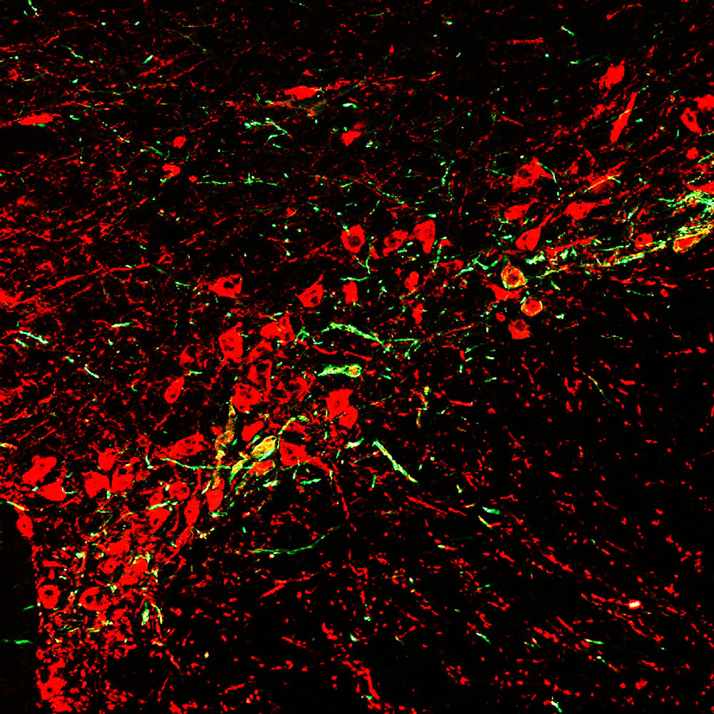 Neurons in the substantia nigra stained for tyrosine hydroxylase (red), expressing ChR2-eYFP from a retrograde viruse injected in the dorsal striatum.