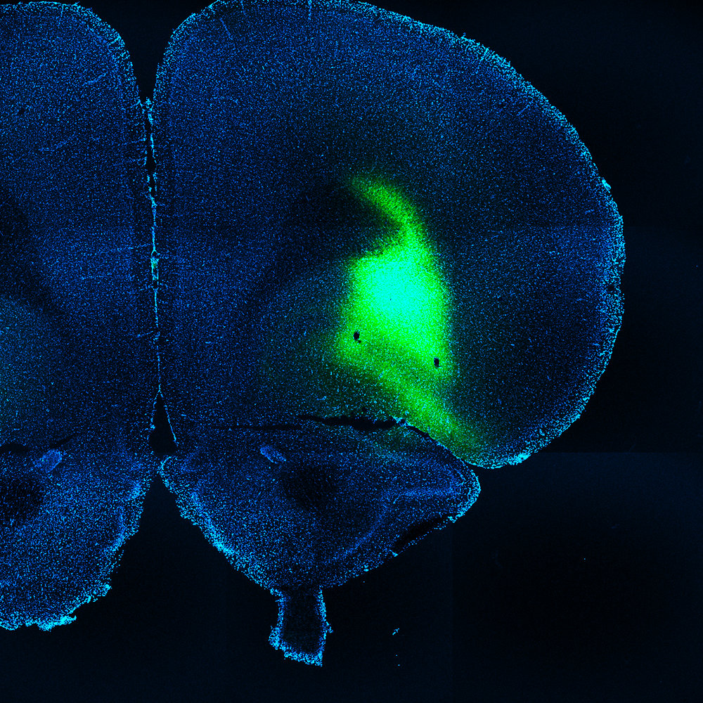 Lateral orbitofrontal cortex neurons expressing ChR2-eYFP (green).
