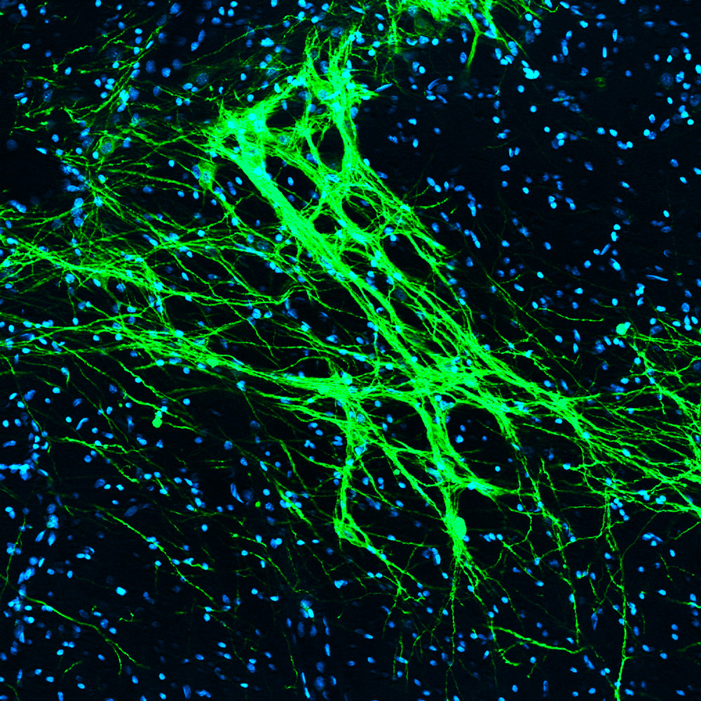 Axonal fibers expressing ChR2-eYFP (green) traversing anterior midbrain.