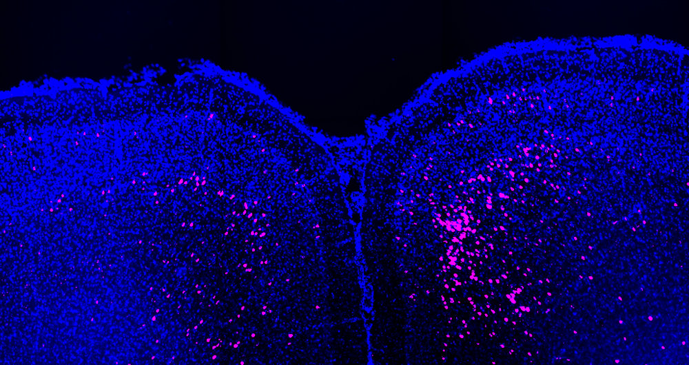 Neurons in the dorsal prefrontal cortex (pink), retrogradely labeled with cholera toxin from the dorsal striatum.