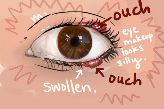 ouch eyelid chalazion