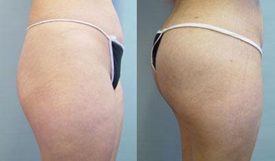 chugay-buttockimplants1.jpg