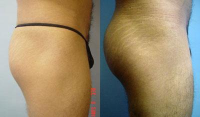 chugay-buttockimplants4.jpg