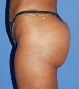 gershenbaum-buttock-post2.jpg