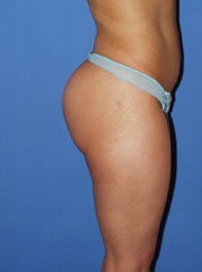gershenbaum-buttock-post7a.jpg