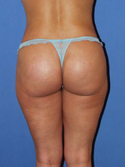 gershenbaum-buttock-post7c.jpg