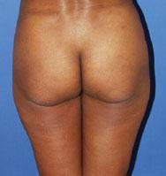 gershenbaum-buttock-pre1.jpg