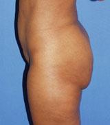 gershenbaum-buttock-pre2.jpg
