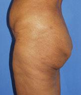 gershenbaum-buttock-pre4.jpg