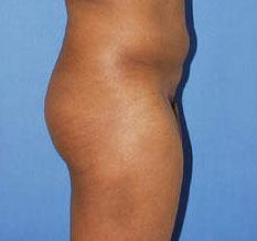 gershenbaum-buttock-pre6.jpg