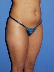 gershenbaum-buttock-pre7b.jpg