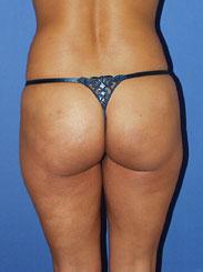 gershenbaum-buttock-pre7c.jpg