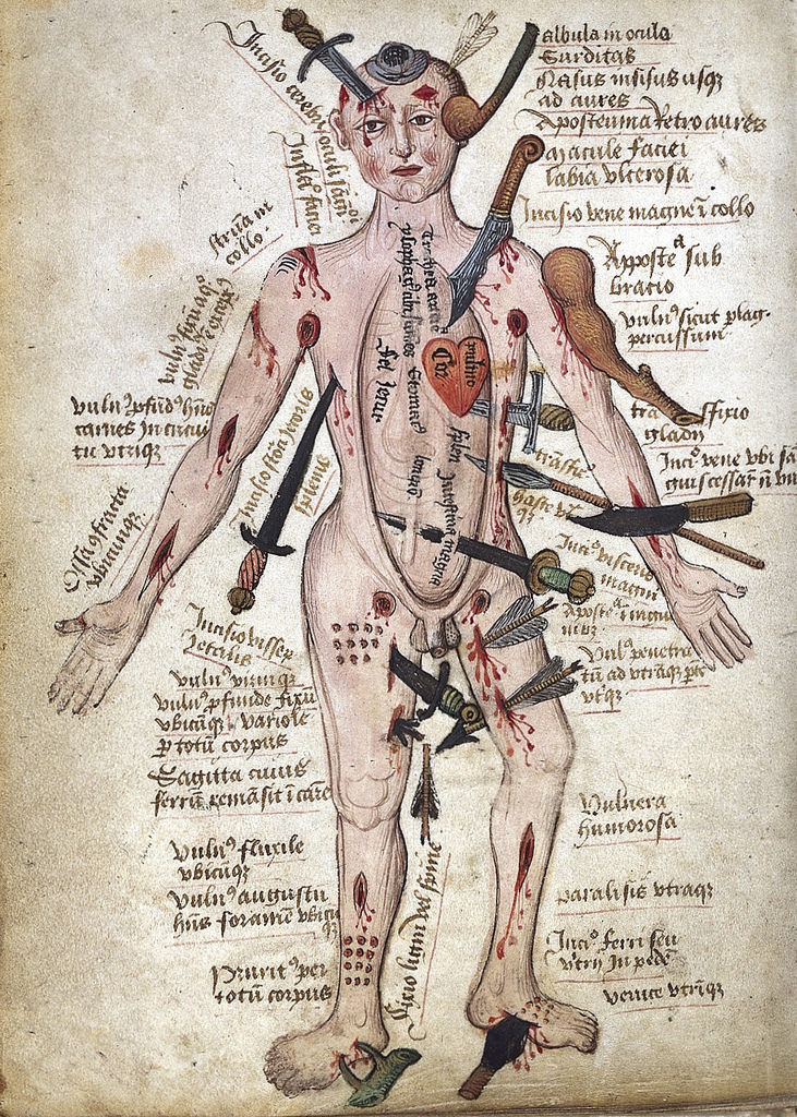 Meet medieval wound man, who is having a rougher day than you are.