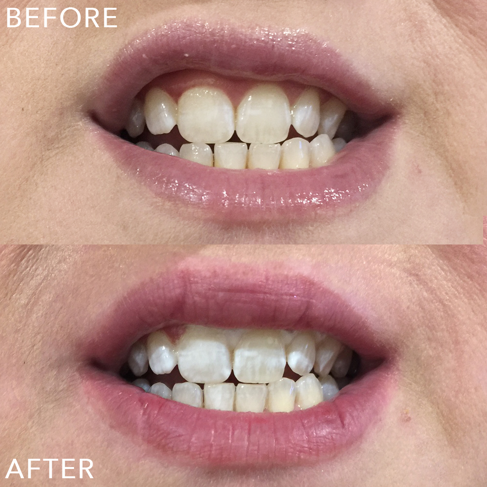 The top shot is BEFORE and the bottom is directly AFTER the 1 hour whitening treatment. The white on my gums is excess gel which dissolved away within an hour. Once I got home my teeth looked like they had 'settled' and were solid white, while the pic above looks a little patchy.