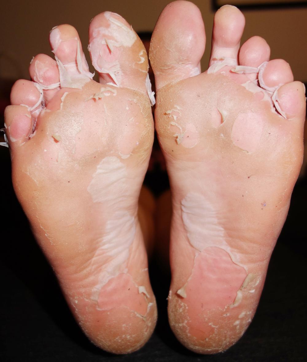 Milky Foot Challenge Marisa Robinson