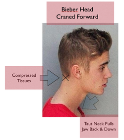 Can Justin Bieber S Posture Contribute To Jaw Pain And