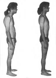 Before and After Photos - Structural Integration Rolfing