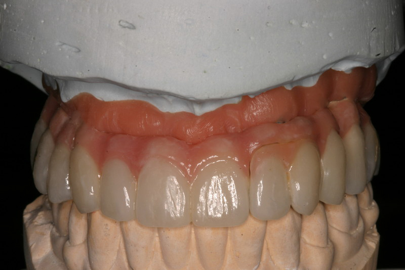 Astra Full Mouth restoration 005 (1).jpg