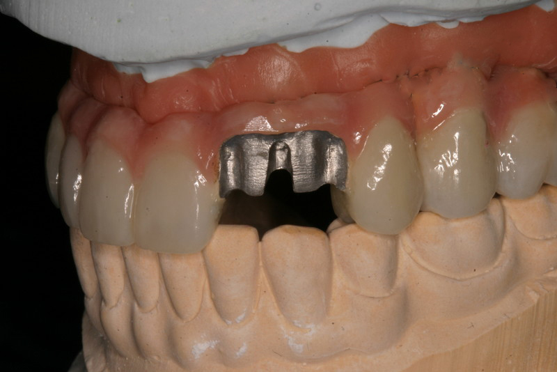 Astra Full Mouth restoration 003 (1).jpg