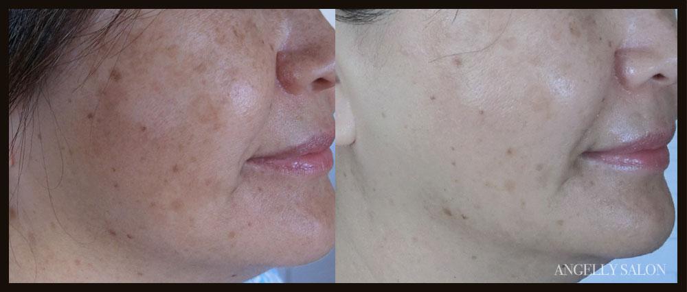 肌質へのこだわり - シミやシワがなく透明感がありキメがそろった美しいお肌