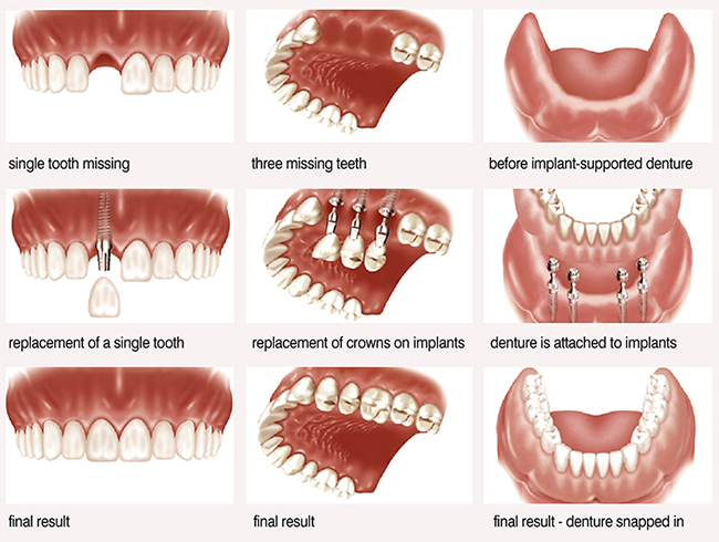 Tooth implant, Bridge over implants and overdenture at Worthing dentist clinic.