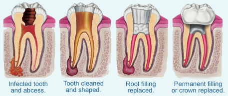 Root Canal Treatment at Worthing Dental Clinic. Pain free root filling.