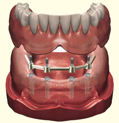 An Implant Retained Denture