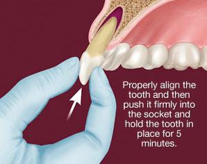 dental-injury-replantation .png