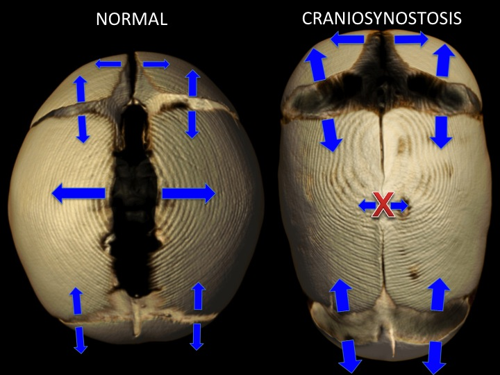 The normal skull on the left shows the direction of growth at the cranial sutures. The size of the arrows depicts a rate of growth - larger means more growth. The skull on the right show  sagittal suture craniosynostosis  where the long suture running back to front on the top of the skull is closed. This closed suture limits widening of the skull. The remaining open sutures must produce more bone to keep up with the growing brain, but they can only grow in one direction. In this case this  compensatory growth  causes the skull to have an abnormally long and narrow shape (scaphocephaly)