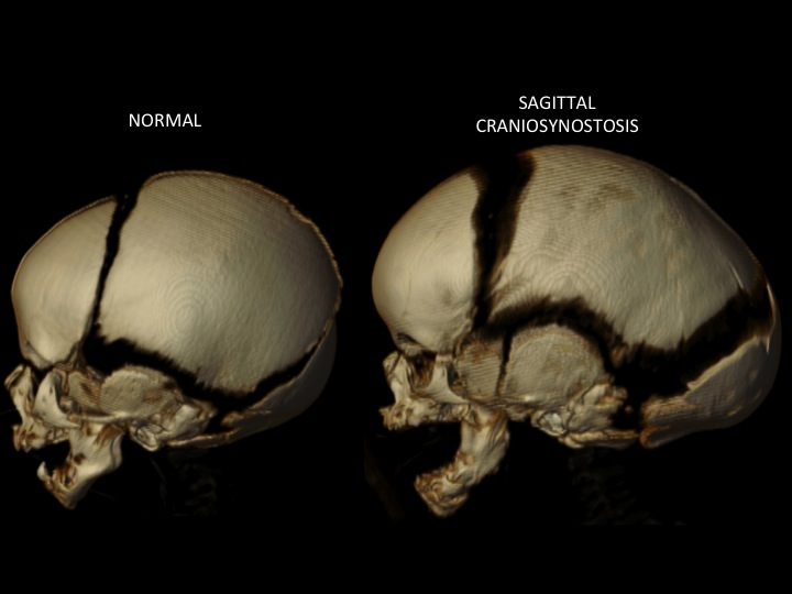 Sagittal Synostosis (Scaphocephaly) — Dallas Pediatric ...
