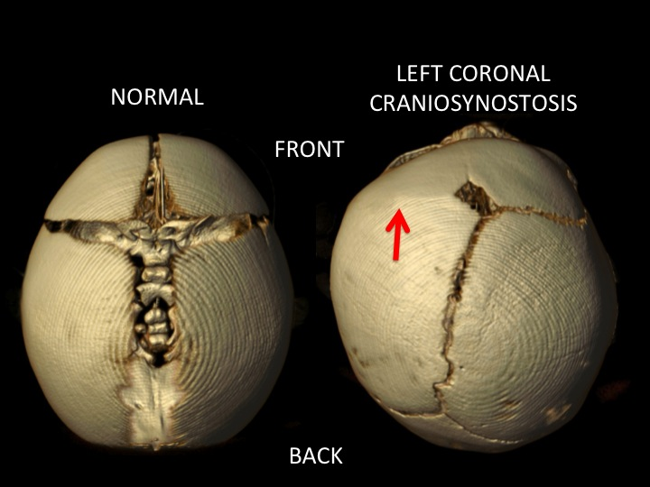 The image above shows the top down view of a normal skull   and a left coronal craniosynostosis with the red arrow pointing to the closed   coronal suture on the left side of the skull. Note that the forehead is flattened on the left and pushed forward on the right. The left side of the skull is shorter than the right side because of the restricted growth on the side of the closed suture (left) and compensatory overgrowth on the right side of the skull.