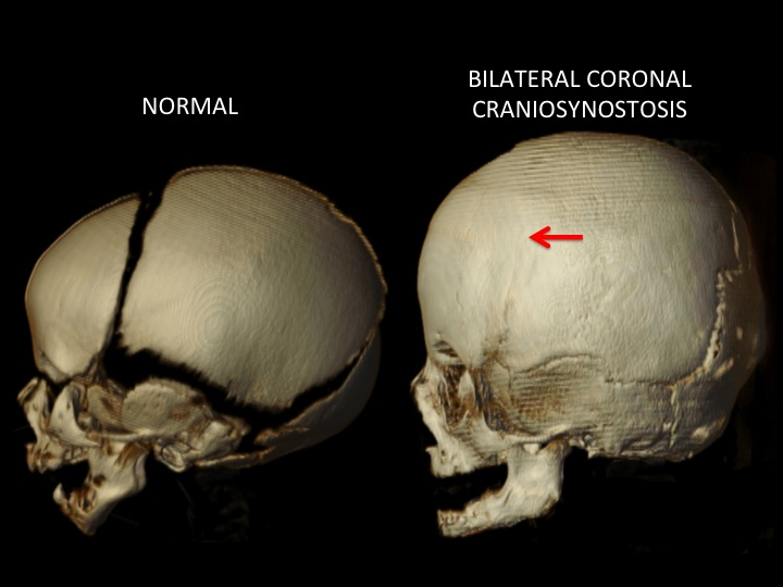 These side views show the closed coronal suture indicated with a red arrow. Note the increased height of the skull and decreased length of the skull from front to back. The forehead is taller and flatter than normal.