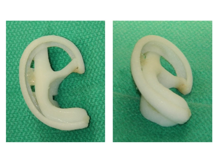 The image on the left shows the construct assembled and the normal Details of the ear. The image on the right shows the projection of the construct to mimic that of a normal ear.